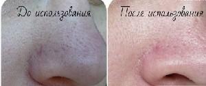 нос с расширенными порами