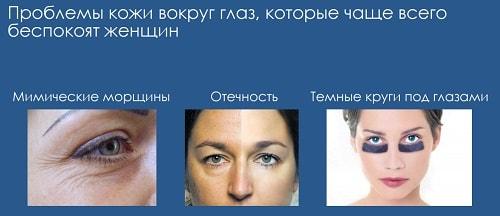проблема кожи вокруг глаз
